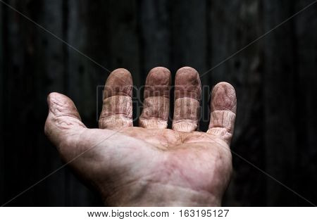 A man holds his hand in front of him. His hand on top.