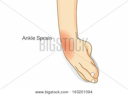 Ankle sprain and swelled. This illustration about common foot injuries.