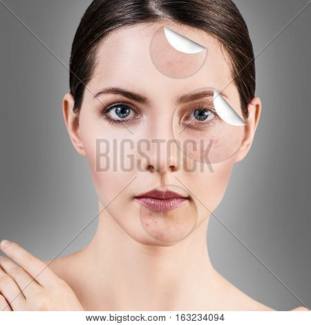 Circles layers of skin with acne unstick from good healthy skin of young woman.