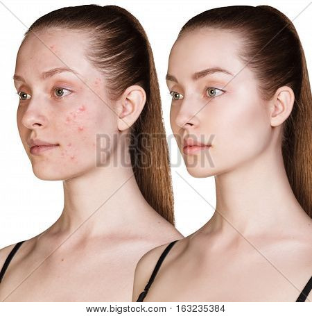 Woman with acne before and after treatment over white background poster