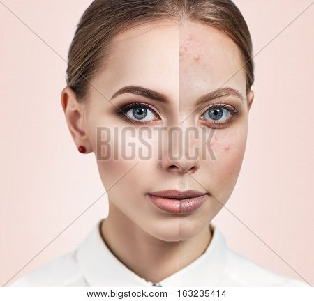 Woman with problem skin on her face before and after treatment over beige background