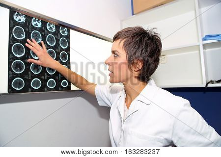 Doctor looks at computed tomography images of head