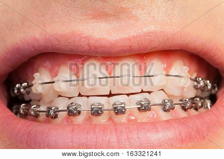 Close-up picture of beautiful man's smile with ceramic and metal orthodontic cases
