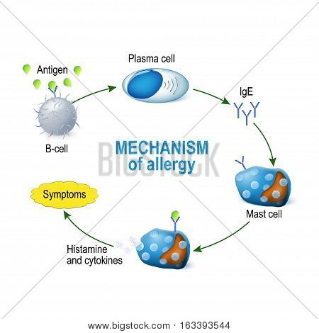Mechanism of allergy. Mast cells and allergic reaction. B-cell is exposed to allergen plasma cells will initiate an overproduction of IgE antibodies. The IgE molecules attach themselves to mast cells. When allergen enters the body for the second time the