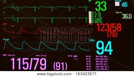 Close up of an ECG or electrocardiogram showing significant sinus bradycardia (green lines), arterial blood pressure  (red line), oxygen saturation  (blue line) and noninvasive blood pressure against a black background.