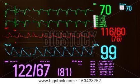 Close up of E,KG or electrocardiogram showing pacemaker driven heart beats (green lines), arterial blood pressure  (red line), oxygen saturation  (blue line)  and noninvasive blood pressure against a black background.