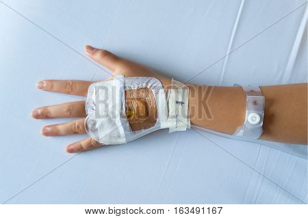 Saline intravenous (iv) needle inserted into a childs hand with secured transparent dressing.