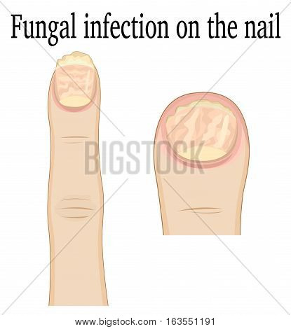 Fungal infection on the fingers of the feet and hands