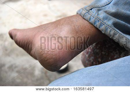 Dry skin on heel elderly Asian man.