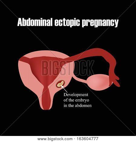 Development of the embryo in the abdomen. Ectopic pregnancy. Infographics. Vector illustration.
