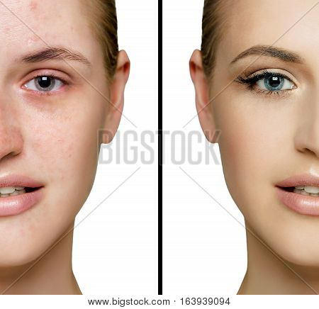 Female face acne and with perfect skin cut in half to present before and after fresh daily make-up. Removing skin imperfections using make-up.