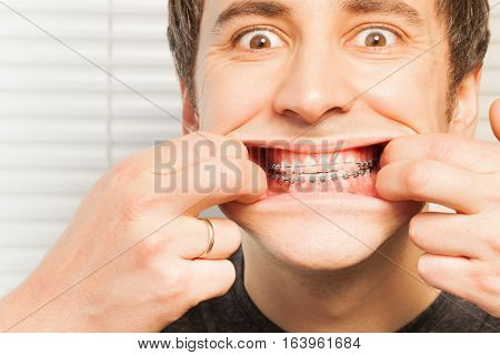 Close-up portrait of cute young man with dental braces