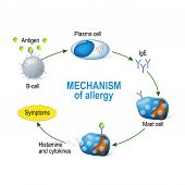 Mechanism of allergy. Mast cells and allergic reaction. B-cell is exposed to allergen plasma cells will initiate an overproduction of IgE antibodies. The IgE molecules attach themselves to mast cells. When allergen enters the body for the second time the poster