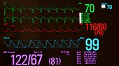 Close up of E,KG or electrocardiogram showing pacemaker driven heart beats (green lines), arterial blood pressure  (red line), oxygen saturation  (blue line)  and noninvasive blood pressure against a black background. poster