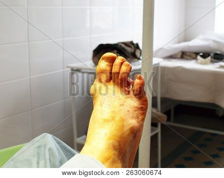 Diabetic Foot Syndrome. Operating. Amputation Of The Fourth Toe.
