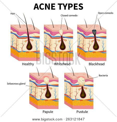 Acne Types. Pimple Skin Diseases Anatomy Medical Vector Diagram. Illustration Of Follicle And Pimple