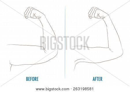 Female Biceps Before And After Sport Arms Showing Progress Fitness Bent Arm With Bat Wing Vs Well Toned Contour Vector Ilration For Beauty