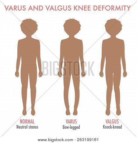 Valgus, Varus Knee, Legs Disease, Deformation Infographic. Boy Silhouette With Normal Leg Stance, Va