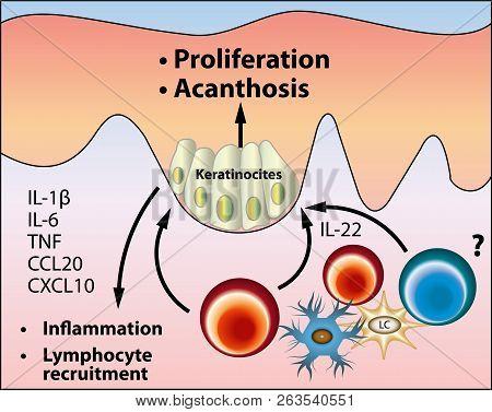 The Pathogenesis Of Acanthosis Nigricans Scheme, Vector Medical Illustration