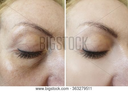 Wrinkle Eye Wrinkles Before And After Treatment