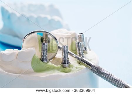 Closeup/ Convertible Abutment Components/ Dental Implant Temporary Abutment/ Abutment Screw Implant.
