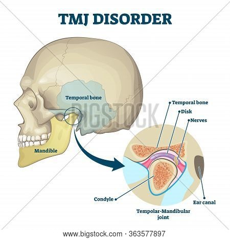 Tmj Disorder Vector Illustration. Labeled Jaw Condition Educational Scheme. Diagram With Joint Click