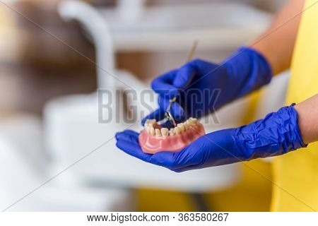 Young Dentist Holding Fake Jaw And Explain With Stomatology Tools. Close Up Photo Of Dentist Hands W