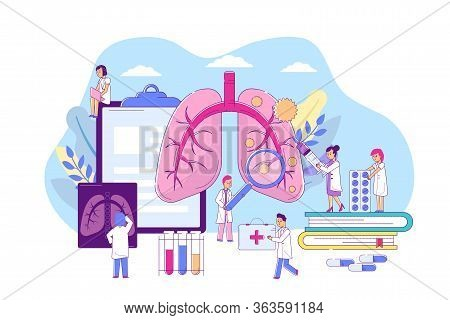 Pneumonia Lungs Disease, Vector Illustration. Respiratory Organ Illness, Medical Diagnosis, Treatmen