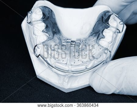 Orthodontic Removable Retainer. Dental Blue Removable Brace Or Retainer For Teeth, Orthodontic In Th