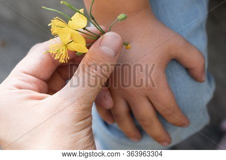 Removal Of Acne And Warts From The Hands Of The Child. Greater Celandine Flowers For Excretion Of Ac