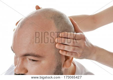 Female hands touching head of bald adult man on white background, closeup