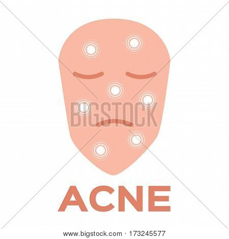 acne icon and vector on white background