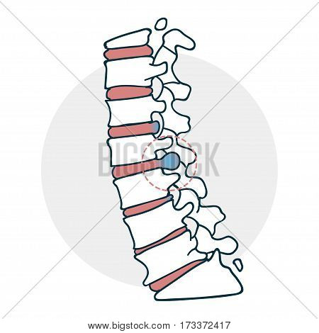 Herniated intervertebral disc icon. Icon on medical subjects. Illustration of a funny cartoon style
