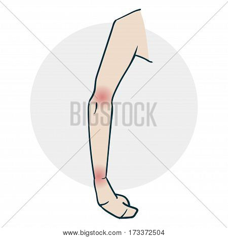 Problems with the limb joints. Illustration of a funny cartoon style