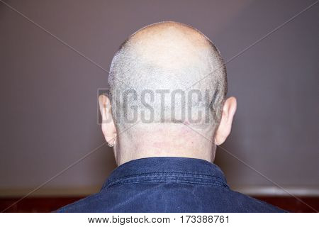 Back of man with bald head and earring in ear