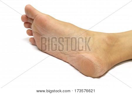 Women's heel feet dry On a white background