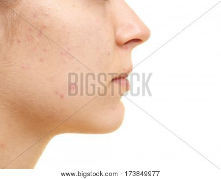 Beautiful young woman with problem skin on white background, closeup
