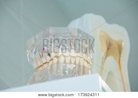 Clean teeth denture, dental cut of the tooth, tooth model, and dentistry instruments in dentist's office.