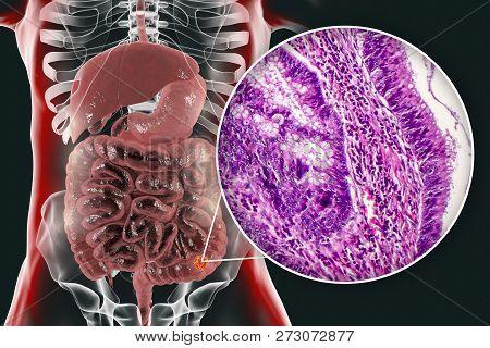 Colon Cancer, 3d Illustration And Photo Under Microscope. Light Micrograph Showing Colon Adenocarcin