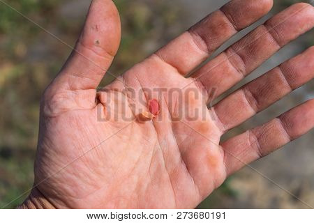 Blister In The Middle Of The Palm, Careless Working, Not Good Safety.