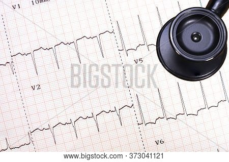 An Abnormal Electrocardiogram Tracing (lateral Wall Ischemia)  And A Black Stethoscope, Heart Diseas