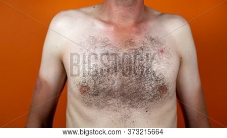 Close Up Of Male Hairy Chest. Part Of Body With Hair.