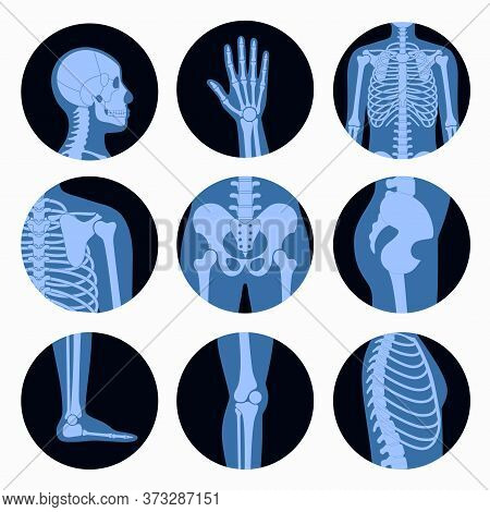 Human Man Skeleton Anatomy, Parts Of Male Body On X Ray View. Vector Isolated Flat Illustration Of S