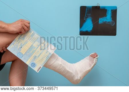 Legs Of A Man With A Broken Leg On A Blue Background. X-ray Image Of Ankle Fracture , Broken Ankle ,