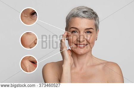 Aged Skin Care. Creative Collage Of Beautiful Mature Womans Portrait With Zoomed Wrinkles Zones Over