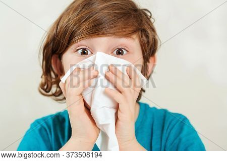 Boy Wipes A Nose A Napkin. Kid Has A Virus, Runny Nose And Headache. Schoolboy Blowing Runny Nose. S