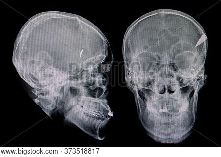 X-ray Films Of A Patient With A Tip Of A Knife Retaining  In The Skull.  Penetrating Skull Injury.