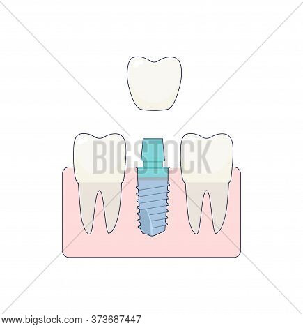 A Dental Implant Placed Between Two Healthy Teeth, The Abutment Is Covered With A Crown. Ivector Ill