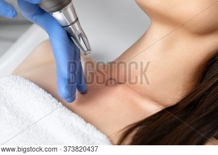 Doctor Beautician Makes Laser Tattoo Removal On The Neck Of A Young Brunette Woman In The Salon. Aes