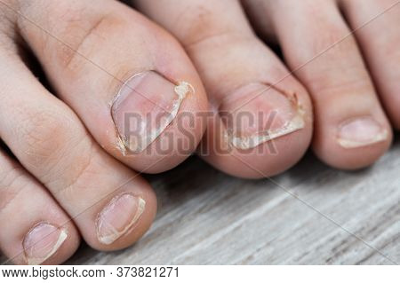 Ugly Toes Of A Girl With A Fungus And Ingrown Toenails And Dry Skin On Her Feet